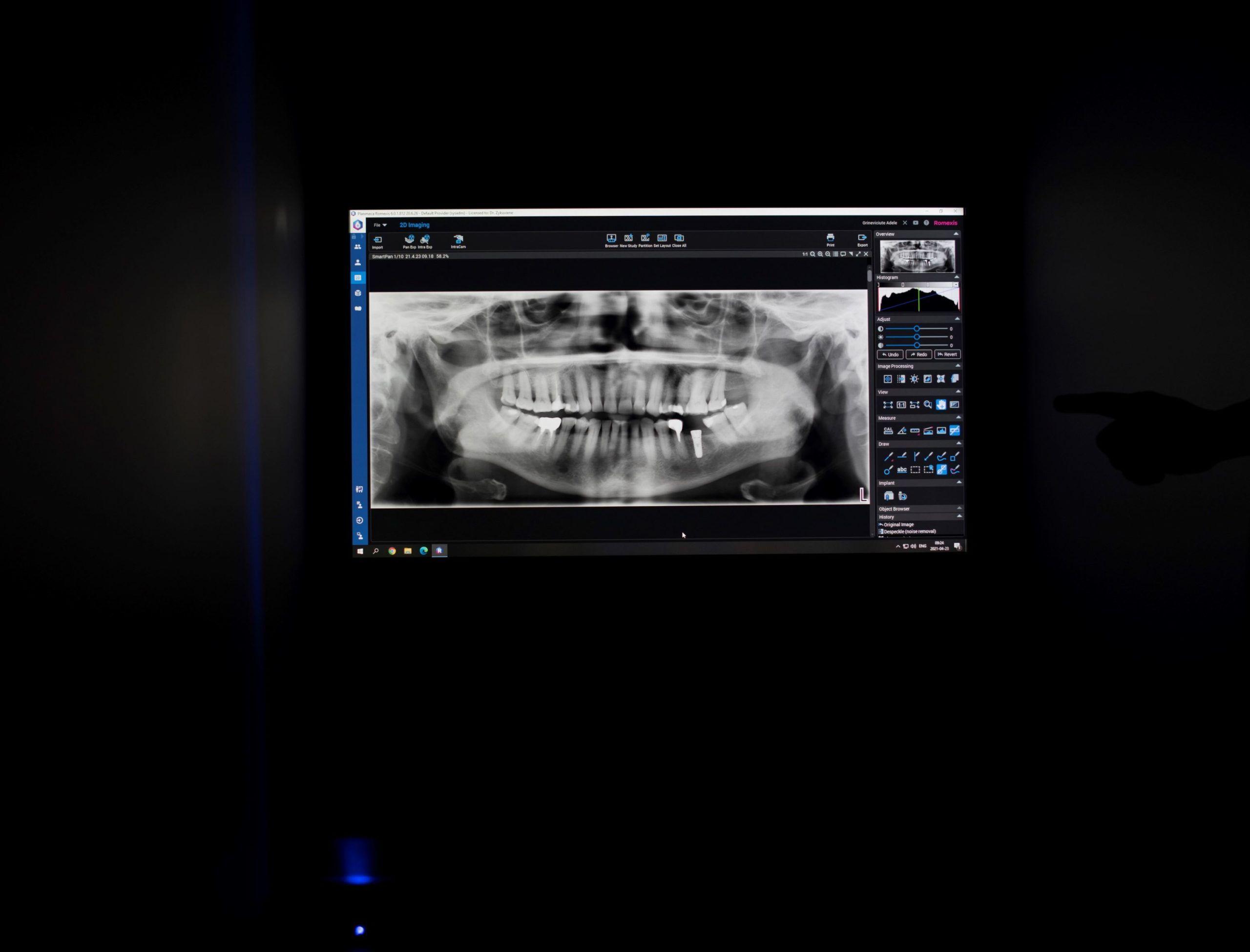 Panoraminės, dentalinės ir 3D nuotraukos